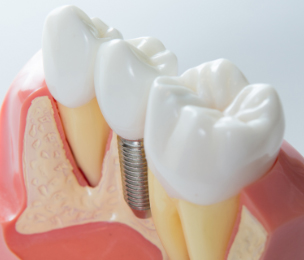 Model displaying perfect dental implant of a tooth in a dental clinic