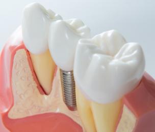 Model of custom dental implants in Hamilton dental clinic