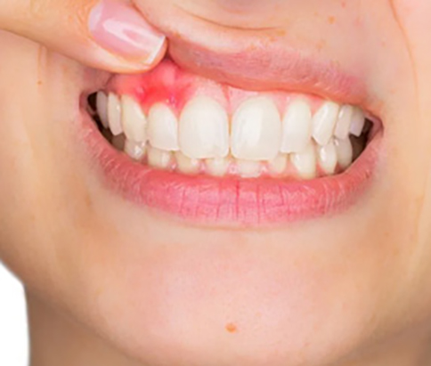 Patient exhibiting her gum disease to the dentist in hamilton
