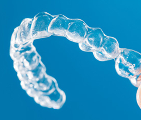 Good quality invisible aligners in a dental clinic