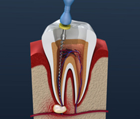 Pictorial representation of root canal procedure done in hamilton dental clinic