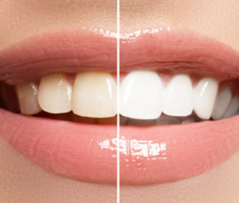 Image comparison of before and after dental whitening services in hamilton
