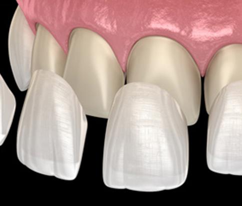Custom made thin dental veneers in hamilton to improve teeth appearance