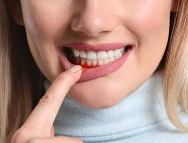 Woman pulls down lip to show swollen gums caused by gum disease